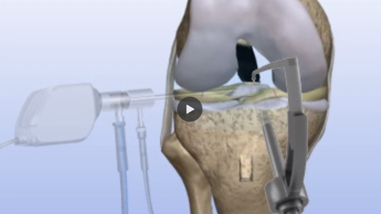 Torn ACL (Anterior Cruciate Ligament) | ACL Tear Surgery