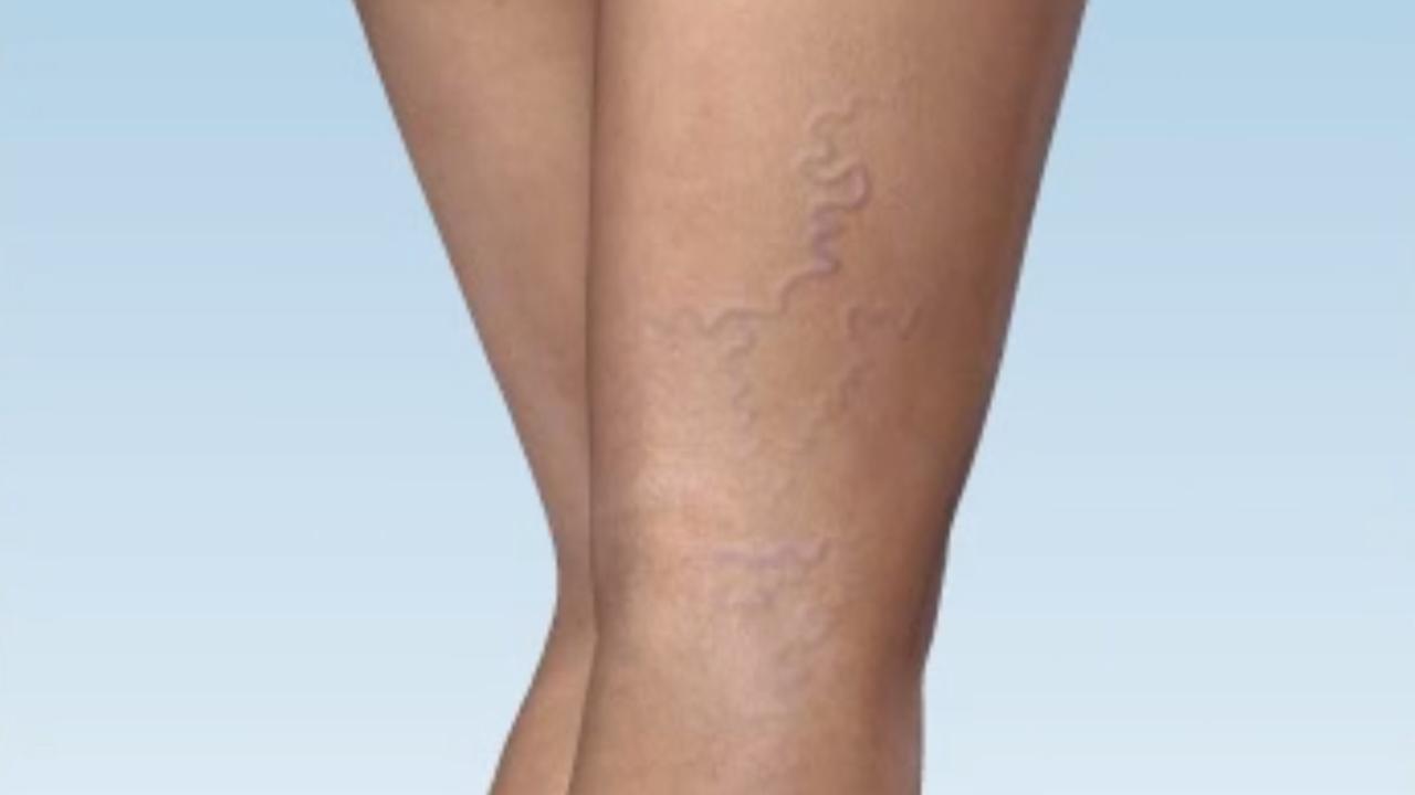 Ciorapi compresivi medicali anti-varice anti-trombotici