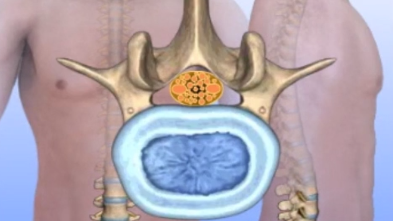 Lumbar Spinal Stenosis – New Jersey Neck & Back Institute, P C