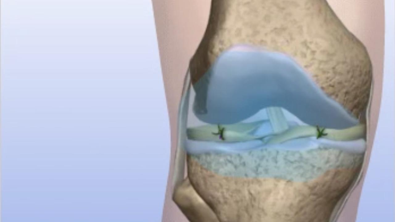 Arthroscopic knee surgery - HonorHealth