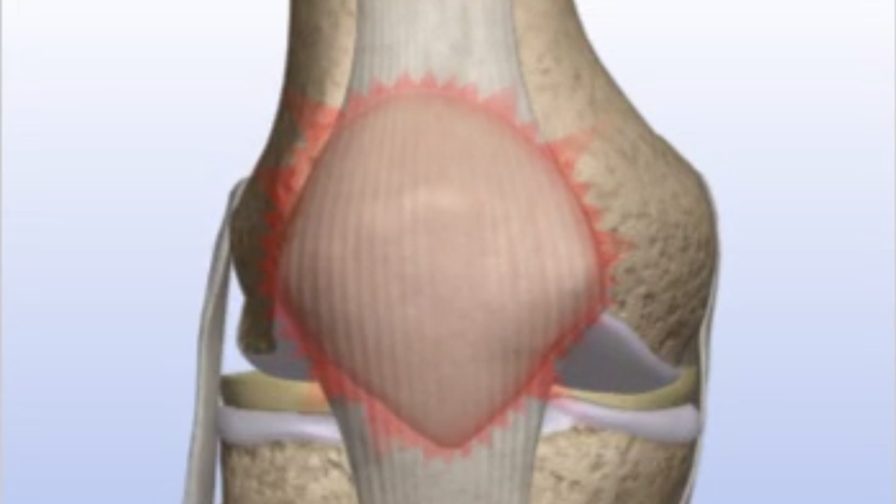 Patella (Knee Cap) Pain - Drilling/Microfracture - Paragon