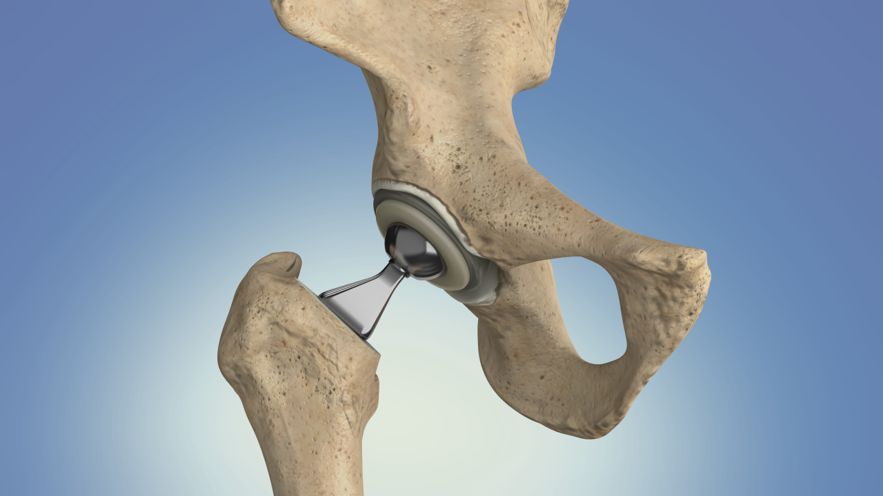 Hip Joint Replacement for Hip Dysplasia | International Hip