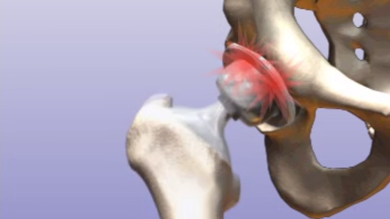 Revision Hip Arthroplasty | Rodriguez Hip and Knee