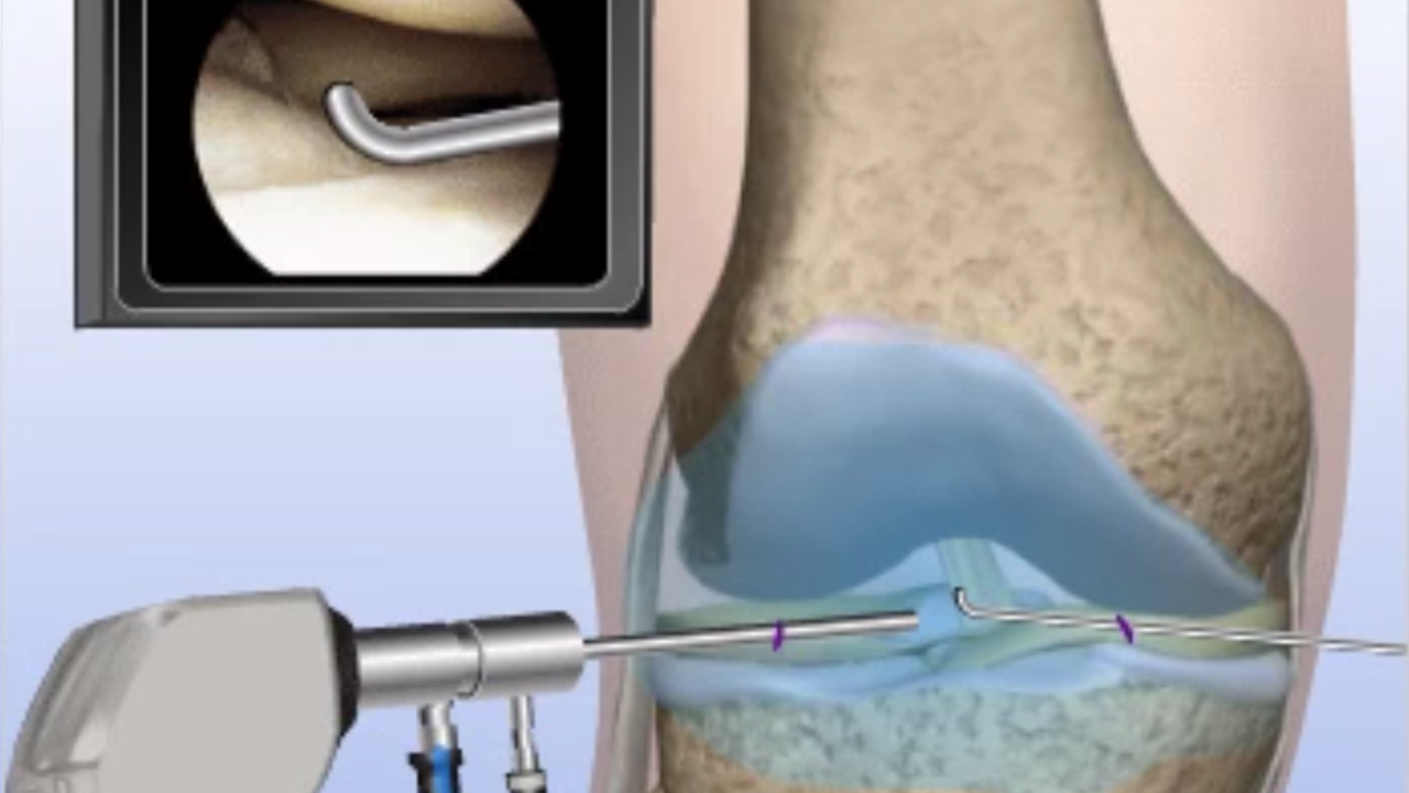 Knee Replacement in Kansas City- OSI Orthopedics | KC Knee