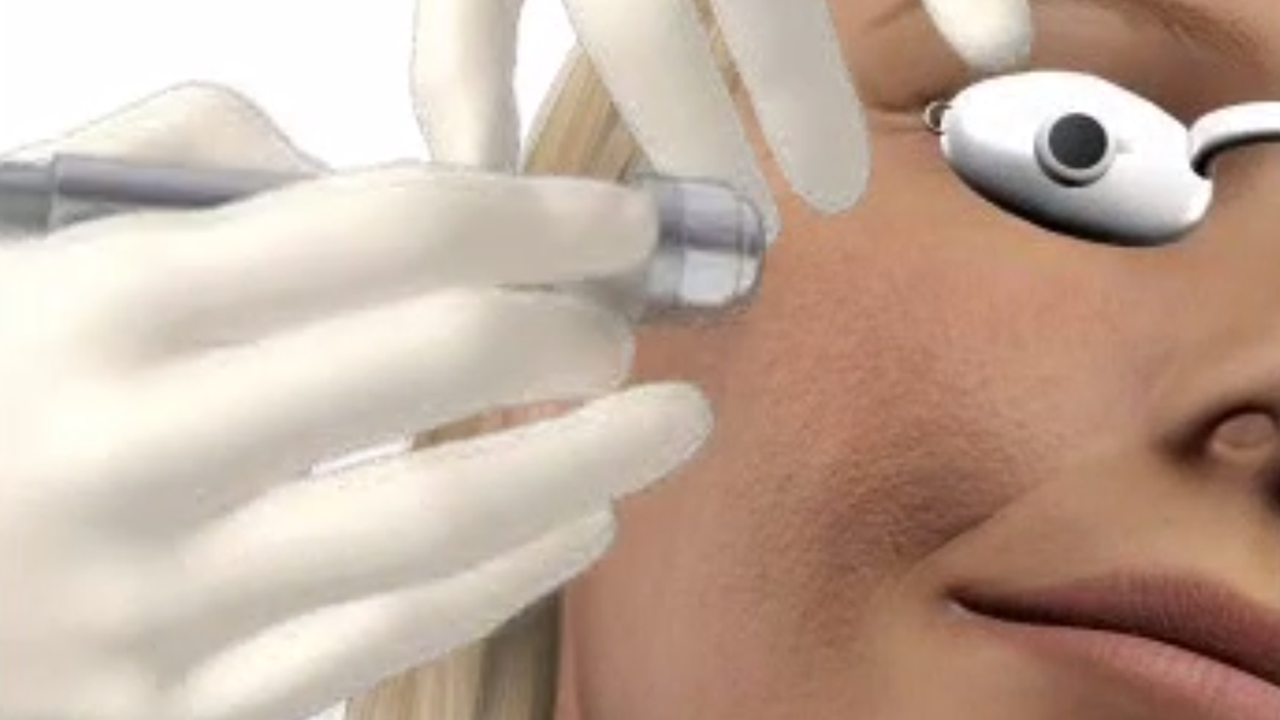 Microdermabrasion Perth - Rejuvenate Your Skin - Absolute Cosmetic