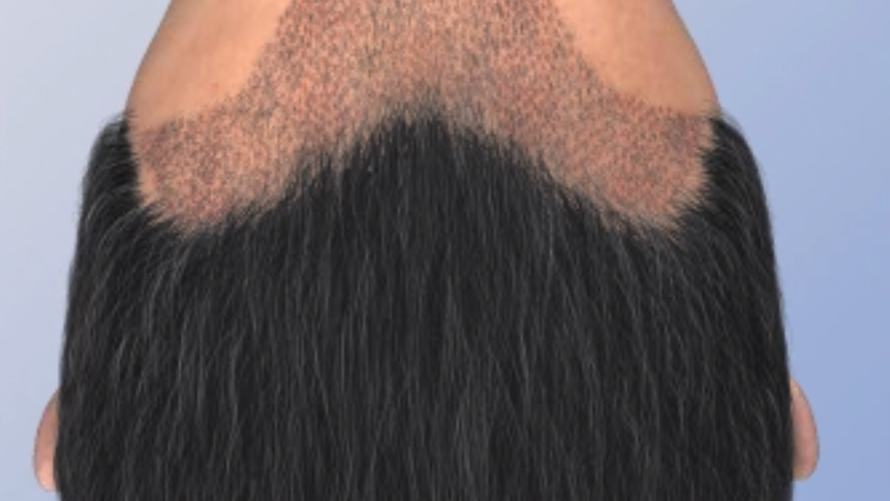 Hair Transplant Surgery - Cost / Price, Advice, Before