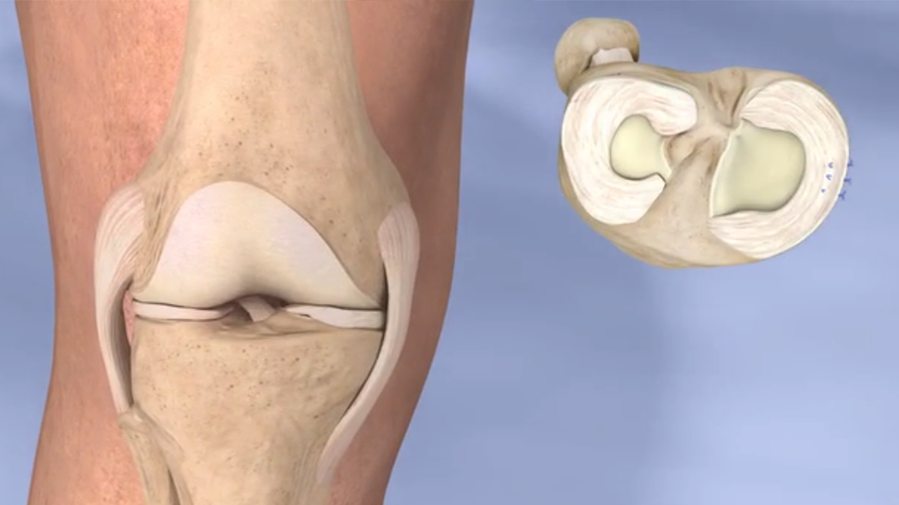 Image result for Know More about Meniscus Tear