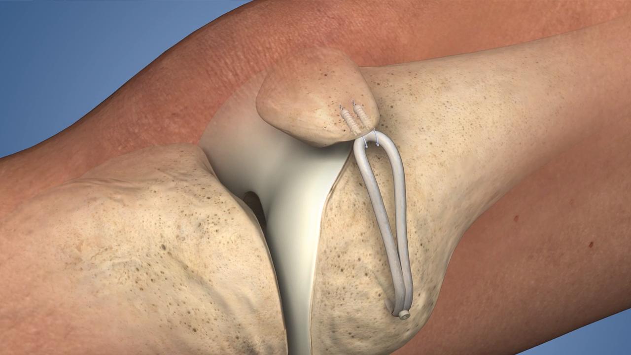 9d4b1bdf79 Medial patellofemoral Ligament (MPFL) Reconstruction