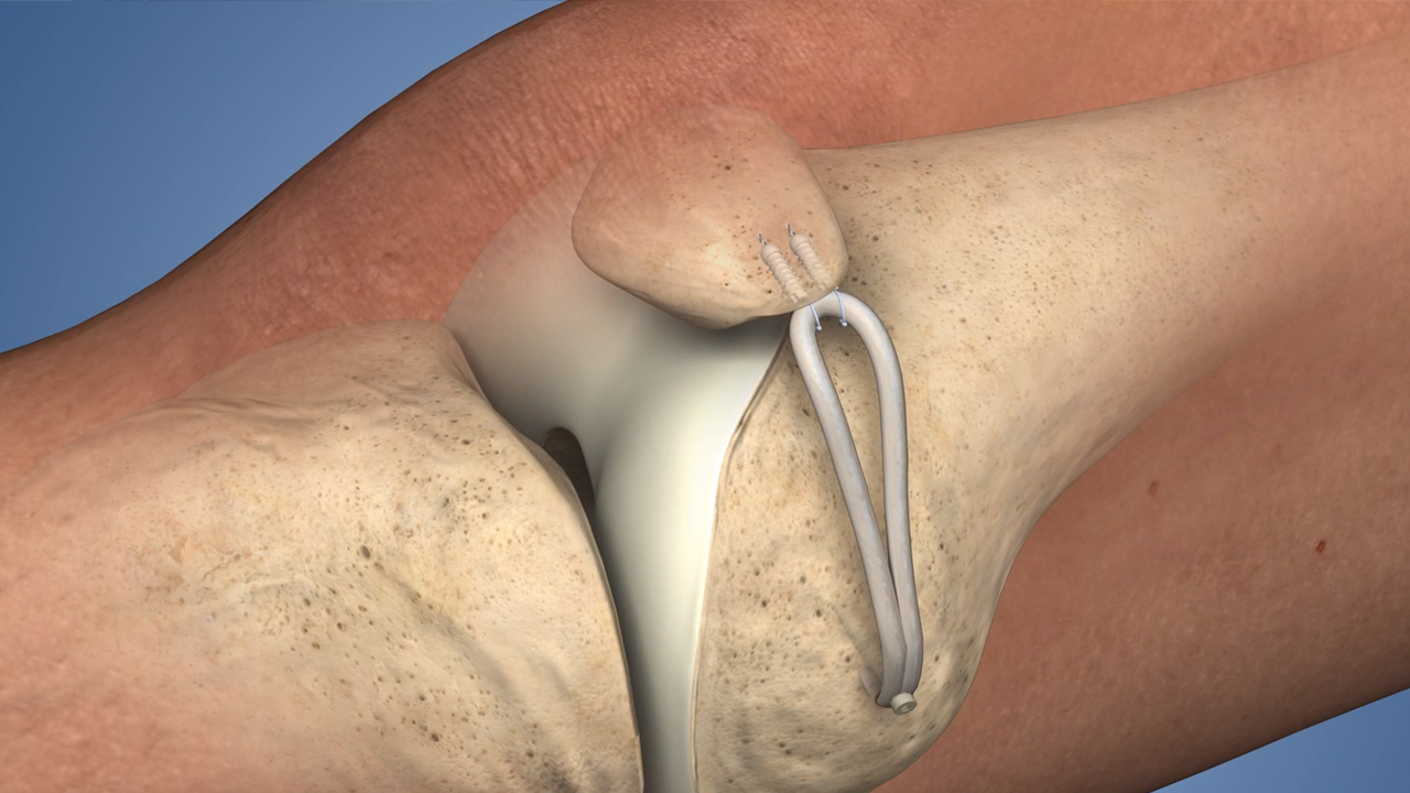 b8feebc0e6 Medial patellofemoral Ligament (MPFL) Reconstruction