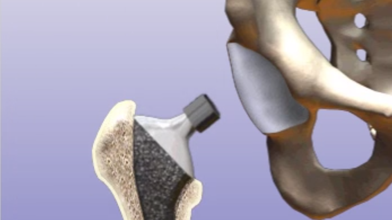 Hip Replacement Surgery >> Partial Hip Replacement Surgery Honorhealth